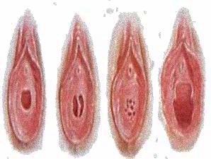 vitekayushaya-sperma-iz-vlagalisha-v-rot